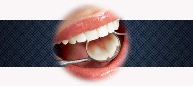 Как сохранить ваши зубы красивыми и здоровыми
